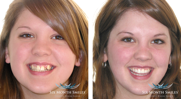 Six Month Braces Dentist